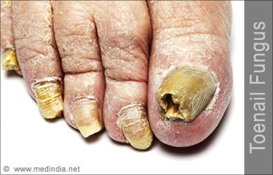 Don't let the fungus damage your feet! Click the picture for natural treatment permanently!